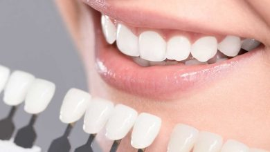 Photo of Teeth Whitening 101: All You Should Know