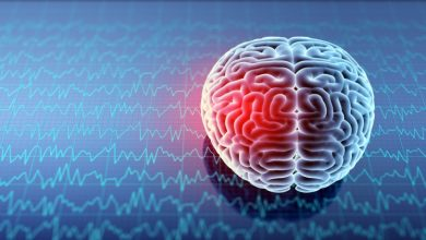 Photo of What you need to know before filing a traumatic brain injury lawsuit