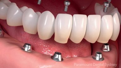 Photo of Everything To Know About Dental Implants In Sydney