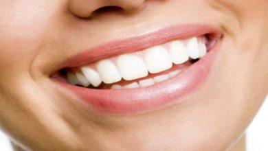 Photo of Benefits of Opting for Dental Veneers